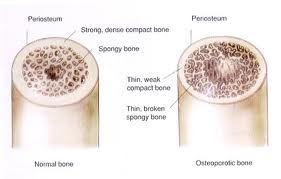 Osteoporosis and Bone